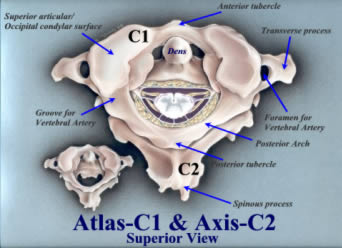 Atlas-C1 and Axis-C2 Superior viewsubluxation