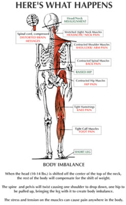 Figure 7: The Effects of the Atlas Subluxation